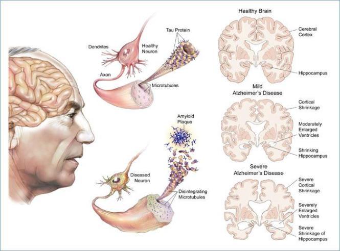 penyakit-alzheimer1